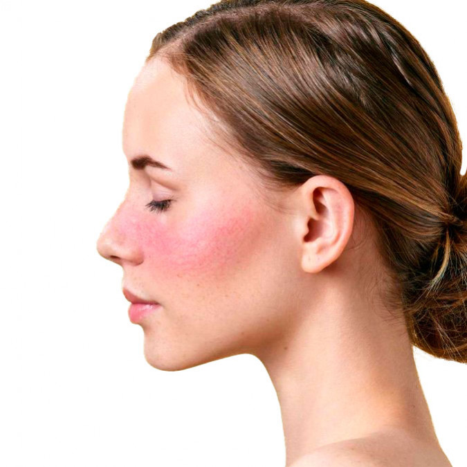 The End of the Stigma (Rosacea)